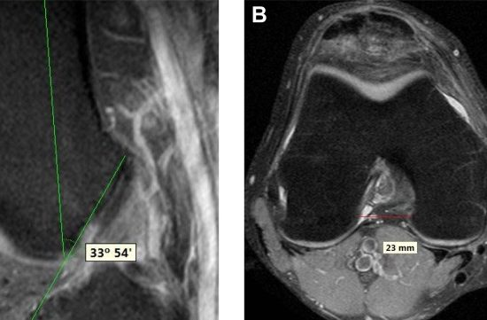 The importance of the intercondylar nothc in anterior cruciate ligament tears