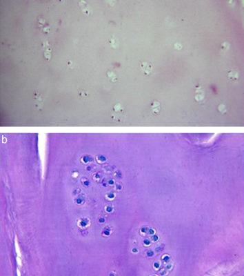 Nuestra experiencia con la técnica de implante de condrocitos autólogos para el tratamiento de lesiones condrales: resultados de 50 pacientes a 2 años de seguimiento