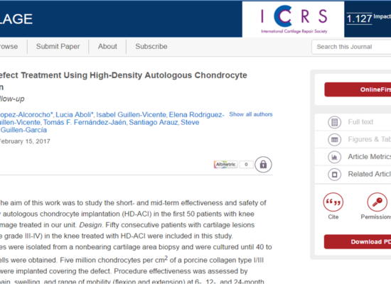 Cartilage Defect Treatment Using High-Density Autologous Chondrocyte Implantation: Two-Year Follow-up