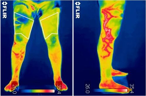 Infrared thermography as a support tool for screening and early diagnosis in emergencies