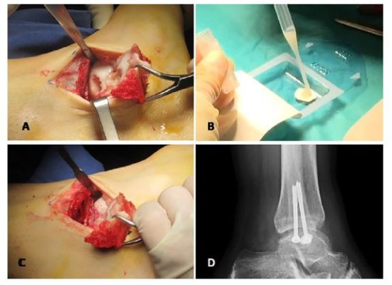 High-Density Autologous Chondrocyte Implantation as Treatment for Ankle Osteochondral Defects